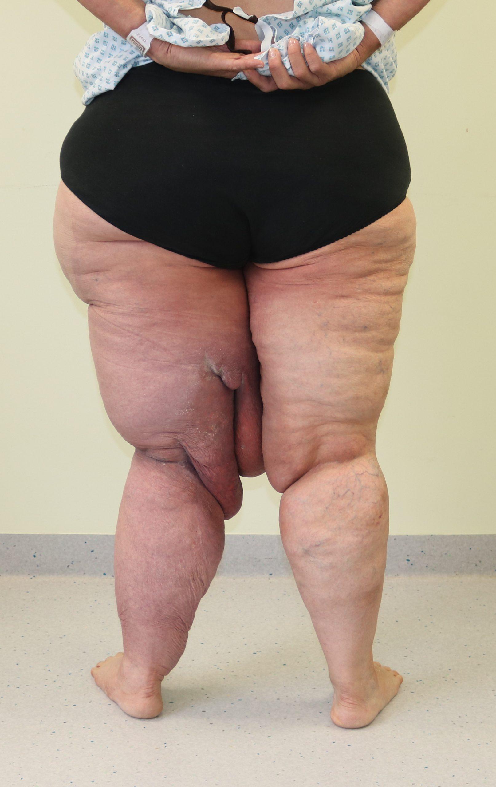Lymphoedema Surgery