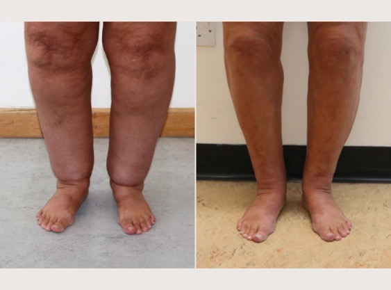 Cankle Surgery