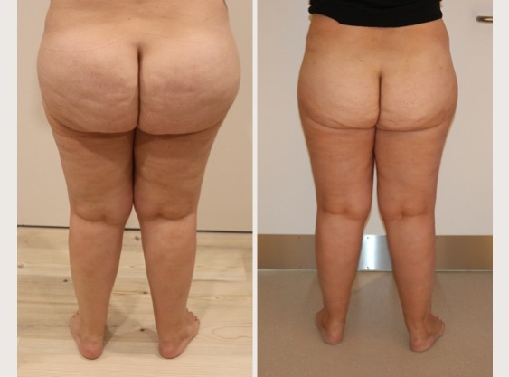 Lipoedema Buttock Liposuction
