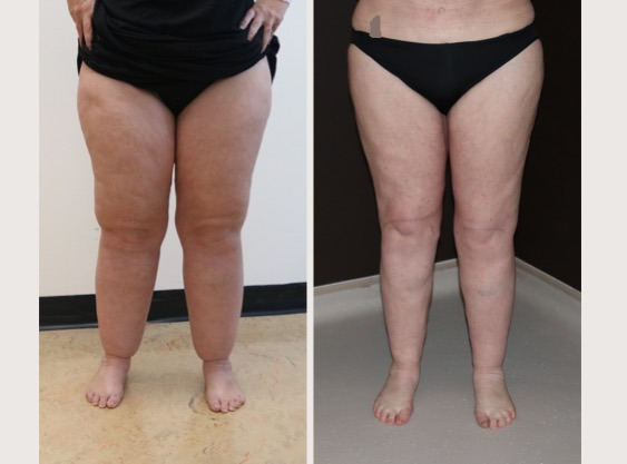 Lipoedema Liposuction