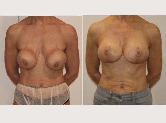 Breast Capsular Contracture |