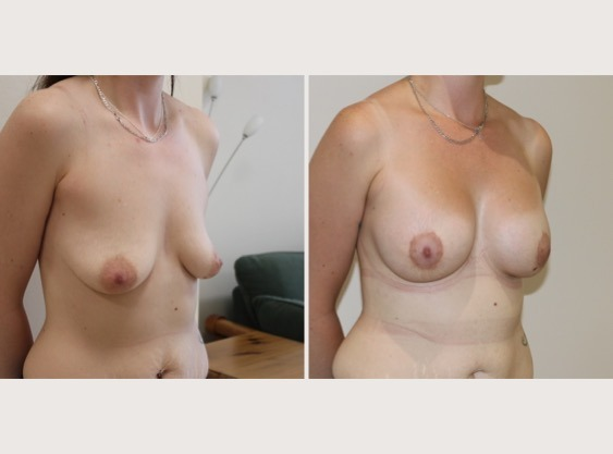 Breast Lift & Enlargement
