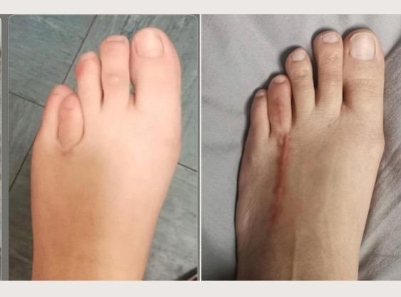Foot bone elongation for brachymetatarsia