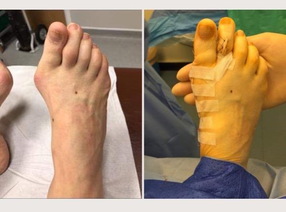 Hallux valgus and toe correction