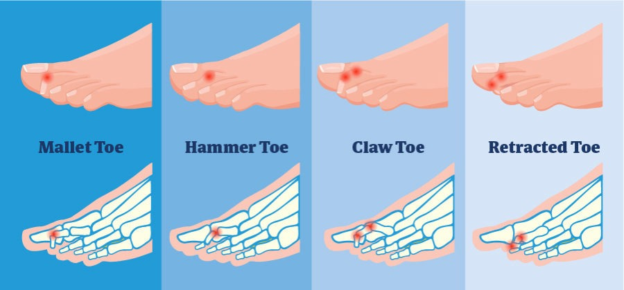 This blog deals with the most common foot condition:- Lesser toe deformity