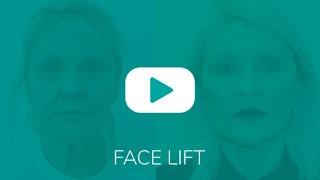 Video_Overlay_FACELIFT