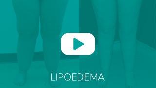Video_Overlay_LIPOEDEMA