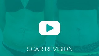 Video_Overlay_SCARREVISION