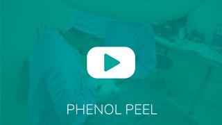 Video_Overlay_phenolpeel